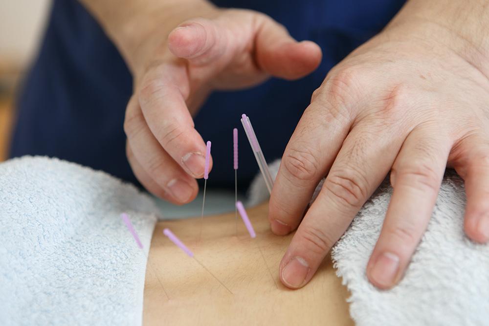 腰痛の鍼治療