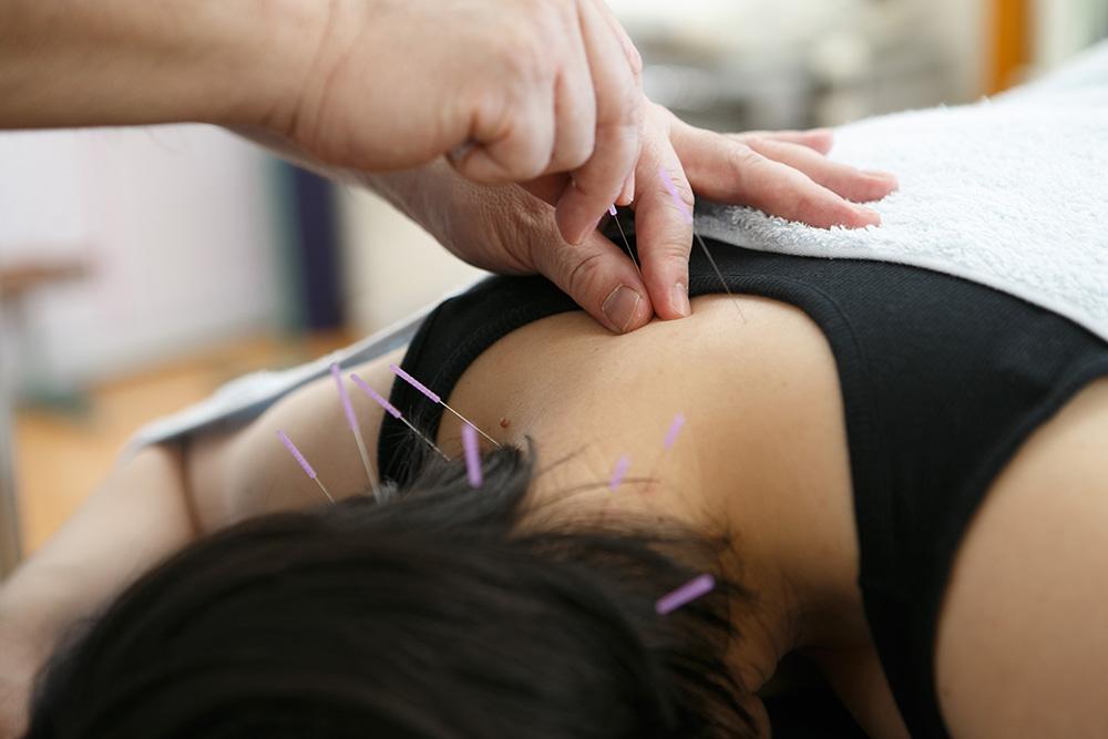 肩こりの鍼治療